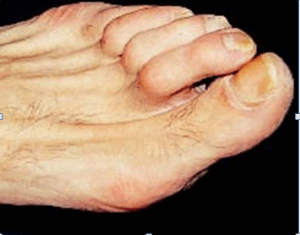 diabetic-foot-syndrome-students-section-1padhamhealthnews